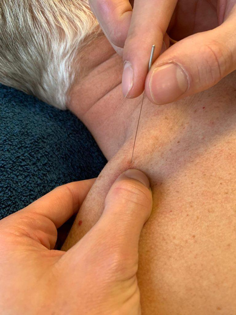 Busser Tjoonk fysio- en manuele therapie dry needling